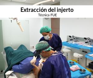 Extracción con la técnica FUE