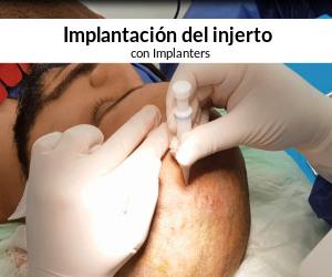 Implantación con implanters